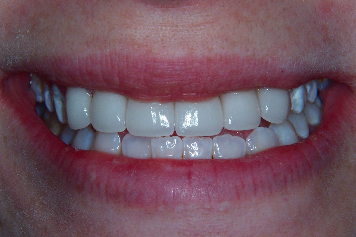 Close Up Of Dental Veneers